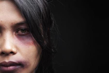 mulher vítima de violência doméstica, com marcas na cara