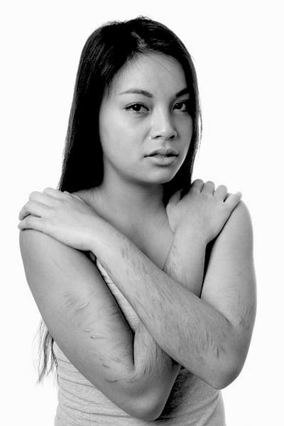 rapariga com cicatrizes de automutilação